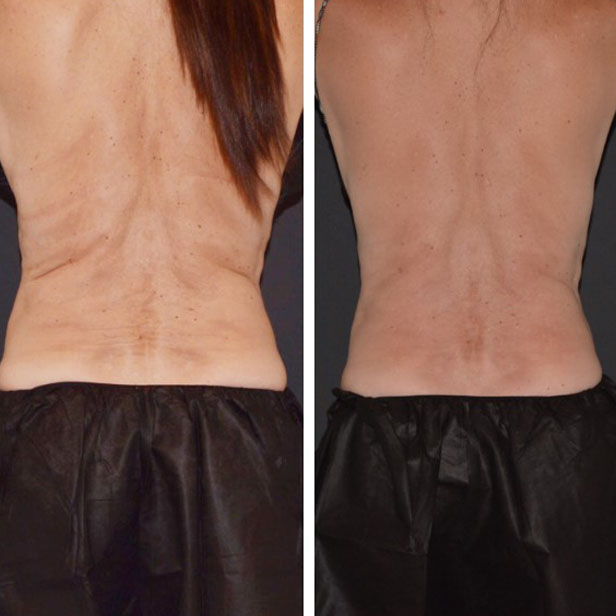 before-and-after-coolsculpting-treatment1