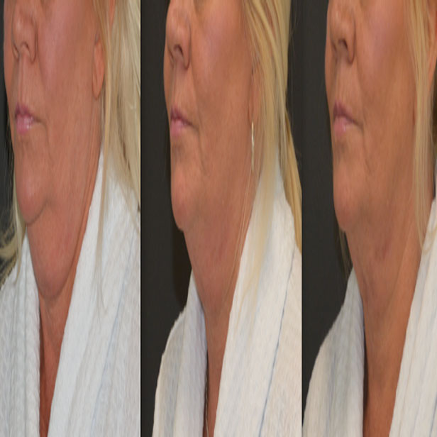 before-and-after-coolsculpting-treatment11