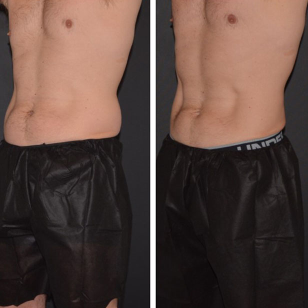 before-and-after-coolsculpting-treatment3