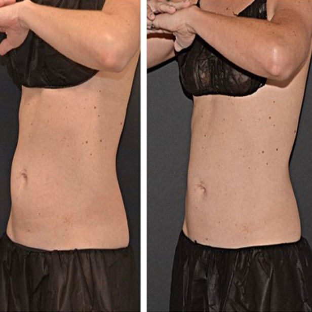 before-and-after-coolsculpting-treatment4
