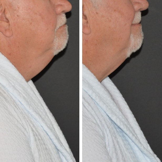 before-and-after-coolsculpting-treatment5