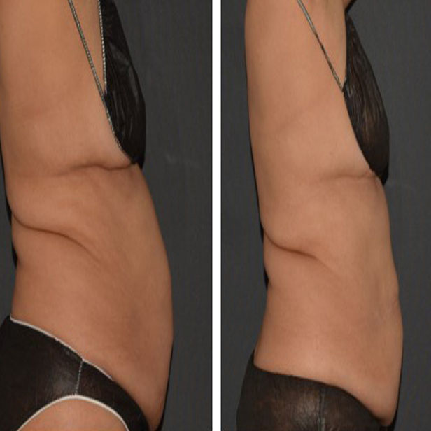 before-and-after-coolsculpting-treatment6