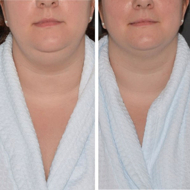 before-and-after-coolsculpting-treatment7