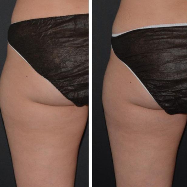 before-and-after-coolsculpting-treatment8